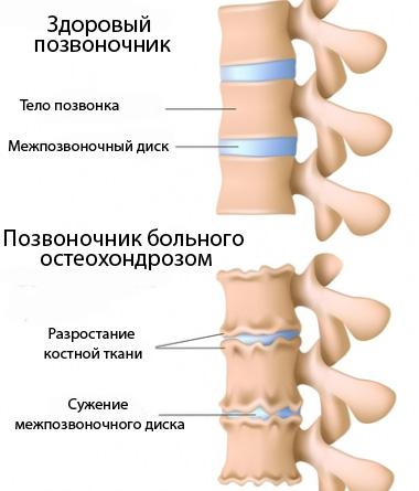 это всегда остеохондроз шейного отдела позвоночника врач очень жаль, ничем